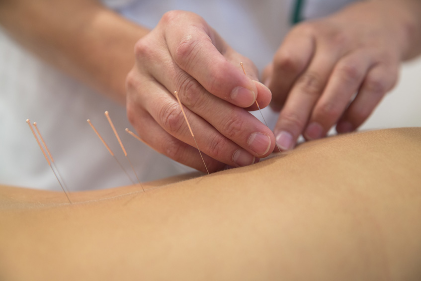 acupuncture in stanmore